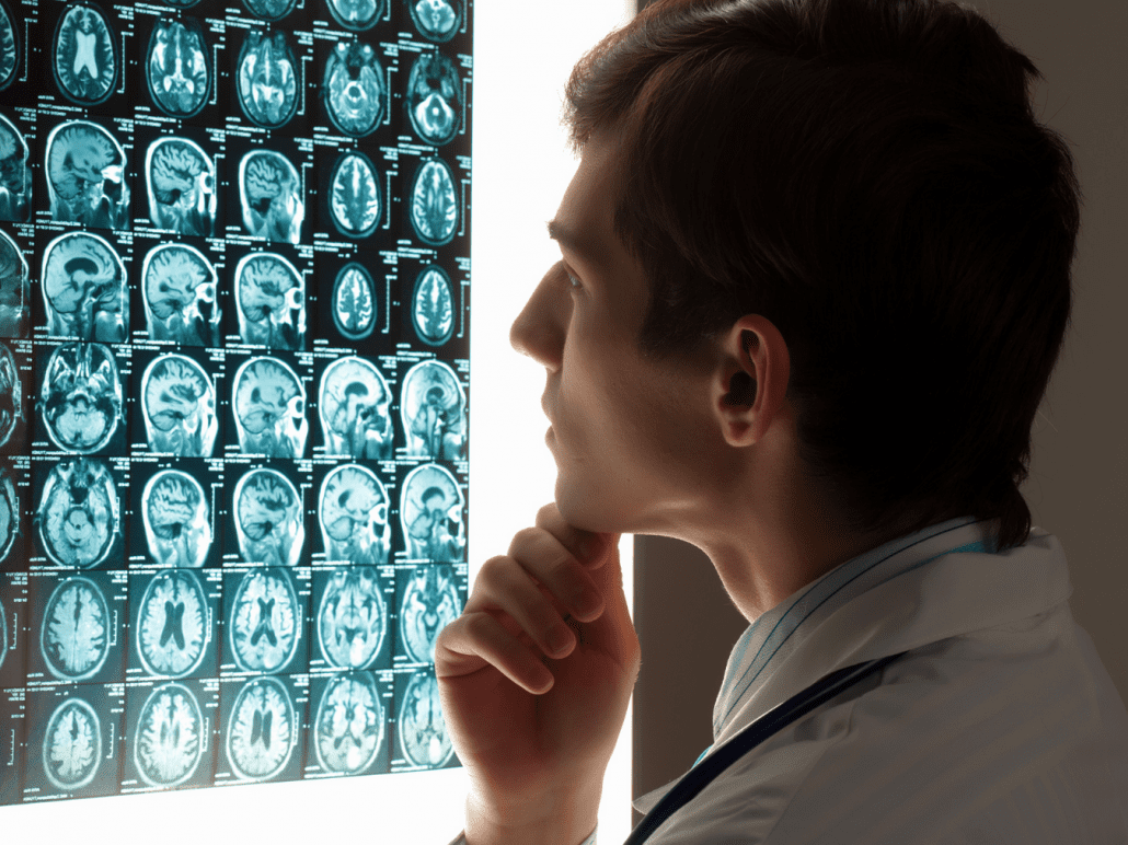 Doctor reviewing traumatic brain injury x-rays